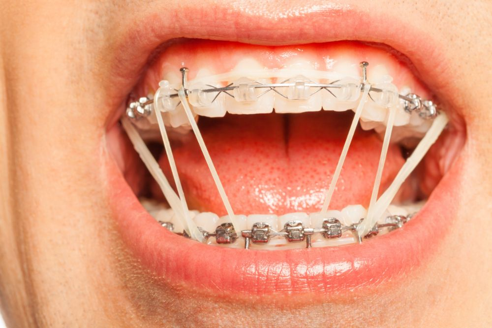 New Start Up Aims To Recycle Those Gross Rubber Bands You Had To Wear With Braces Eritas Daily